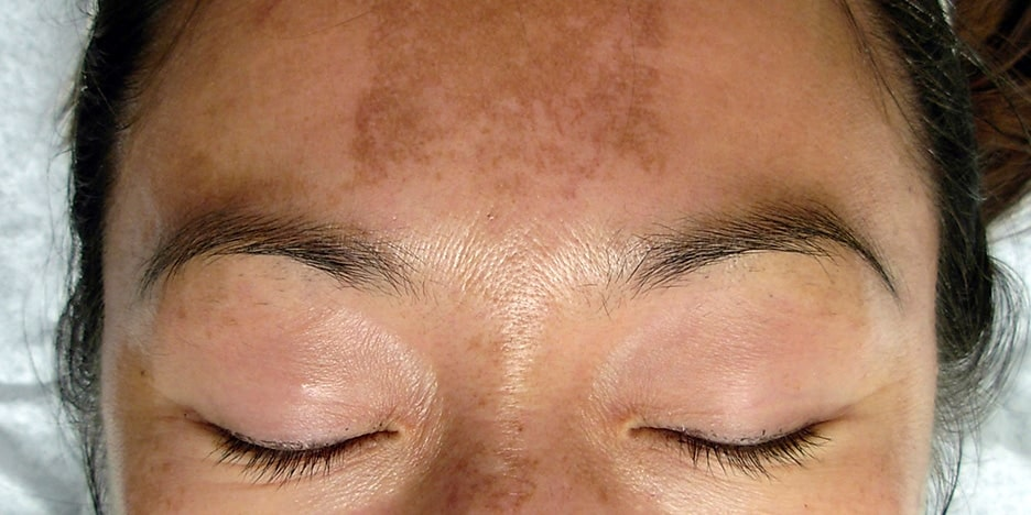Your Oral Medication for Melasma