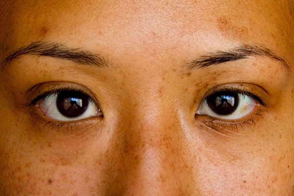 eyes for botox