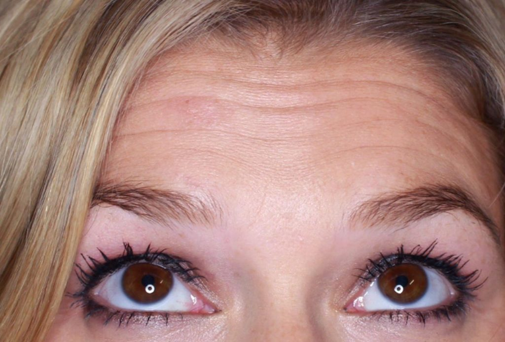 horizontal forehead lines