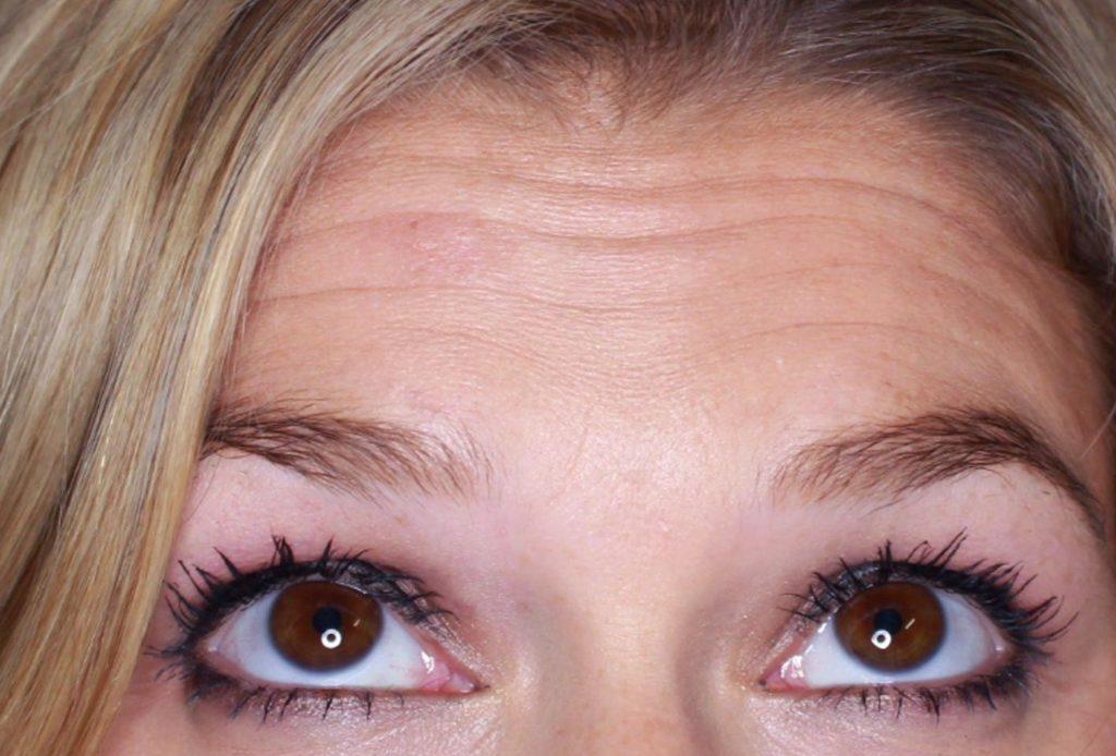 horizontal forehead lines