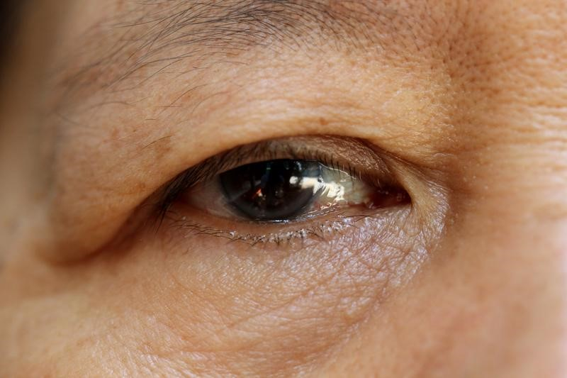older people wrinkly eyes