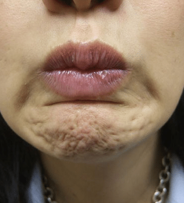 botox for pebbled dimpled chin