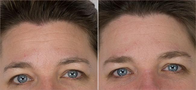 static horizontal forehead lines