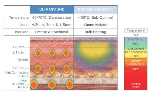 hifu thermage treatment skin