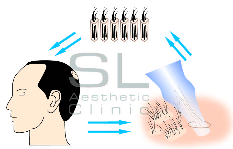 hair transplant and process in Singapore