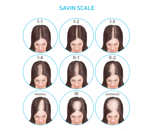 female pattern hair loss scale