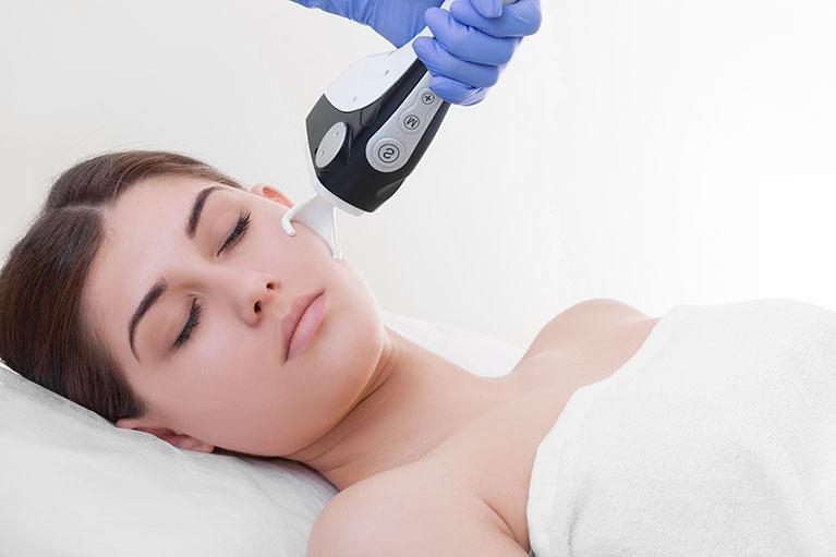 acne scar laser