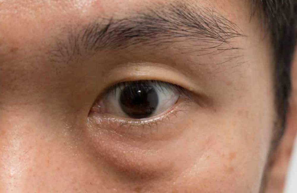 how to get rid of eye bags Singapore