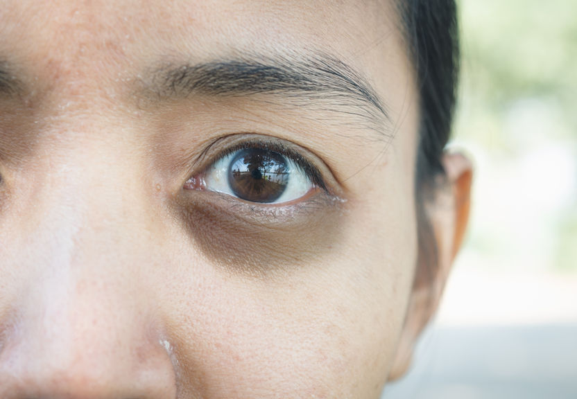 dark eye circles treatment Singapore