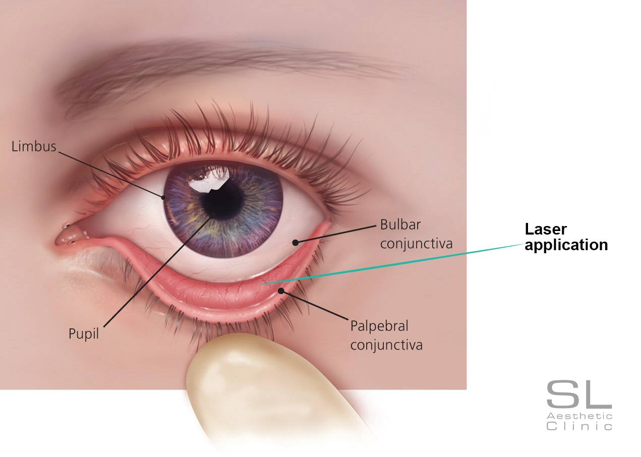 non-surgical eye bag removal laser application