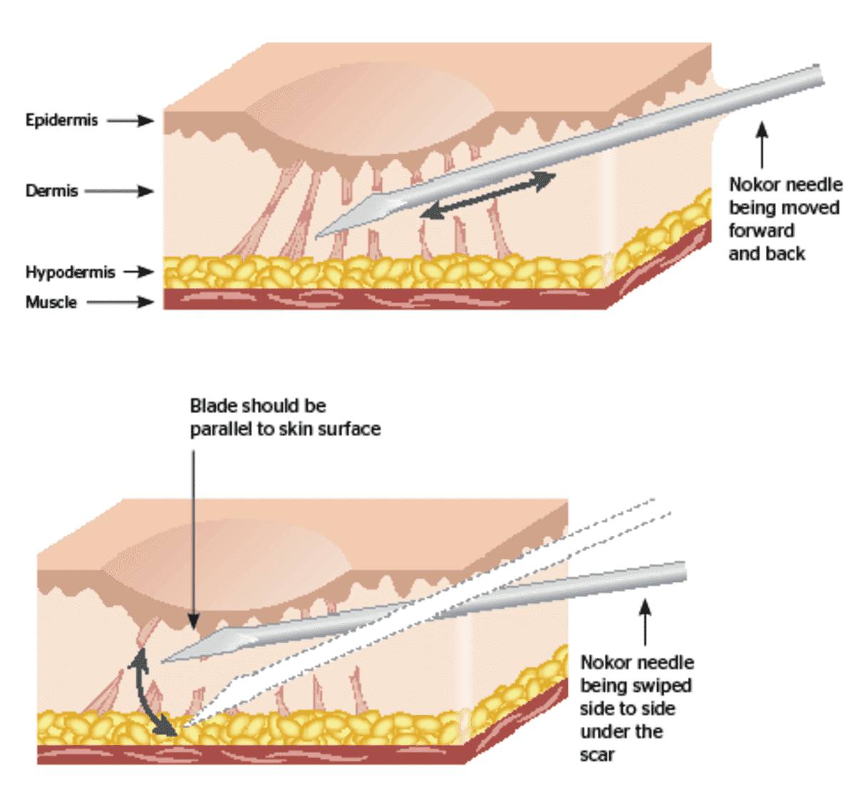 Subcision treatment