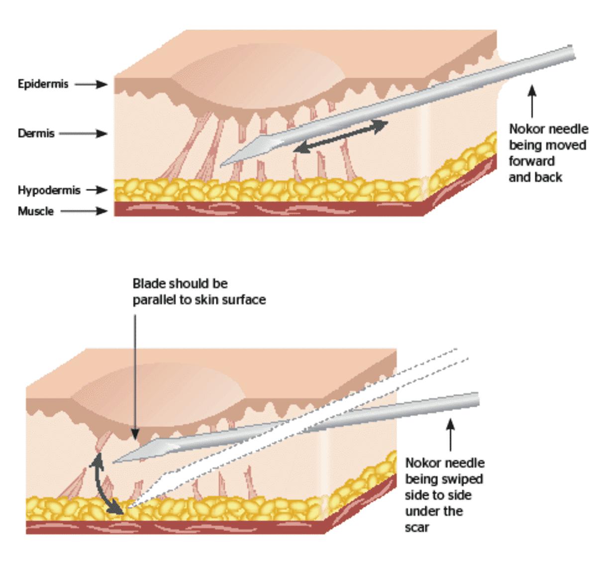 Subcision treatment