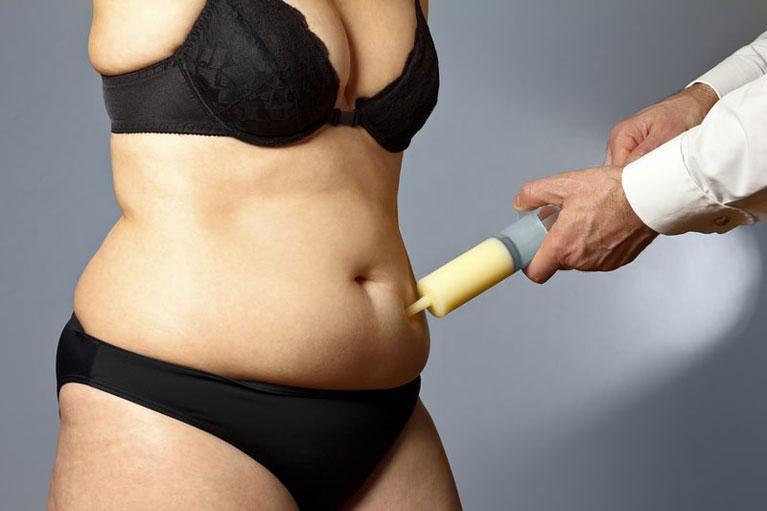 liposuction tummy tightening Singapore