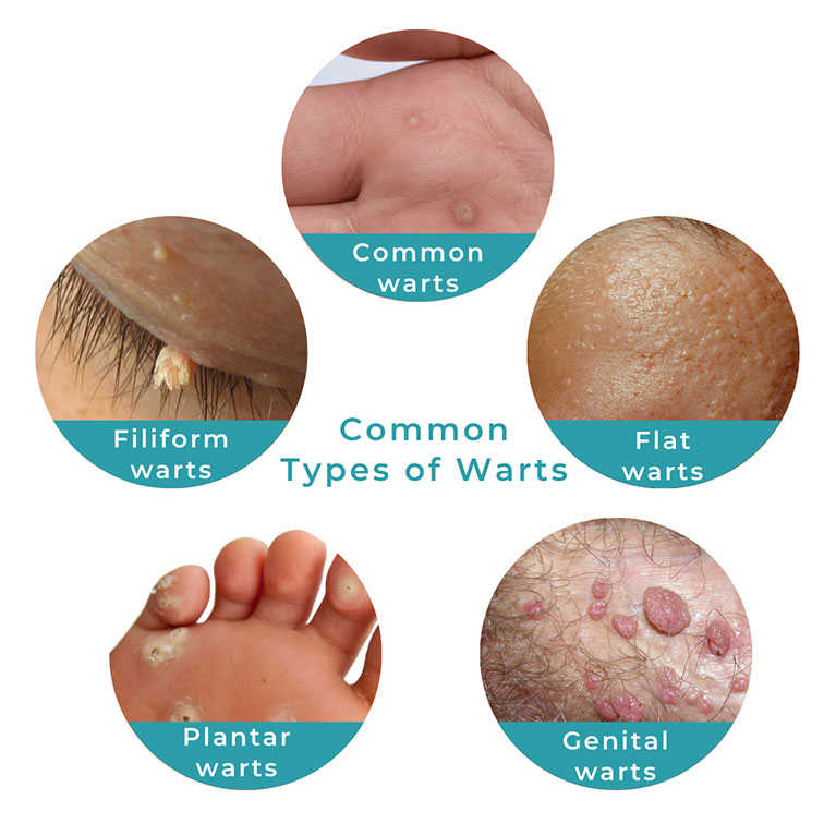 Common Types of Warts