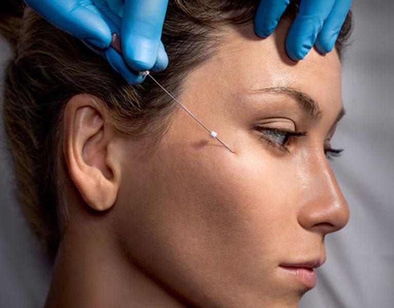 Non-surgical facelift Singapore