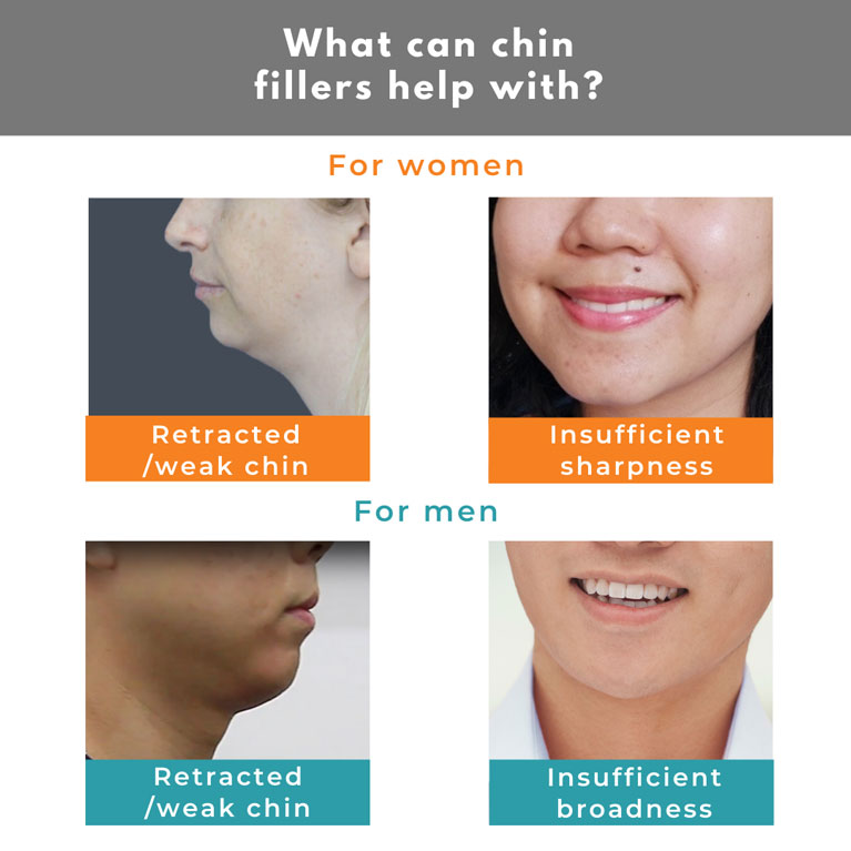 What can chin fillers help with