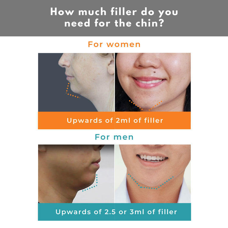 How much filler do you need for the chin