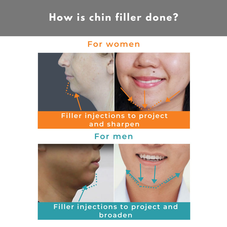 How is chin filler done