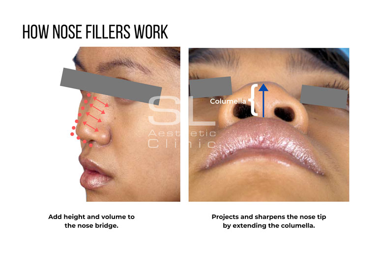how nose fillers work