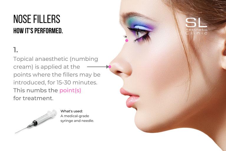how nose filler is performed