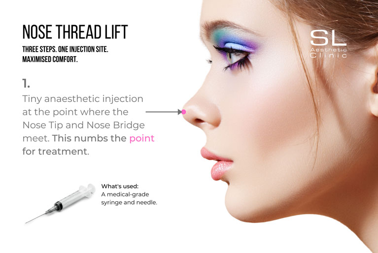 Nose thread lift anaesthetic injection