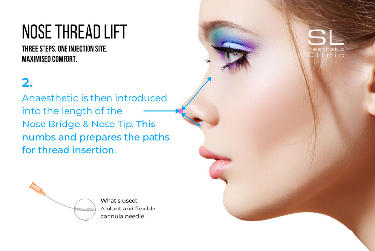 Nose thread lift anaesthetic is introduced into the length of the nose bridge & nose tip