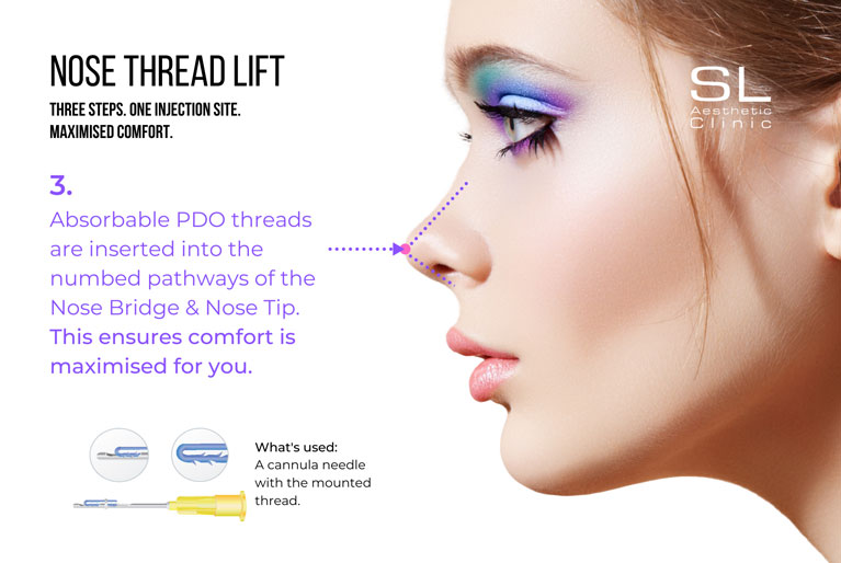 Absorbable PDO threads inserted into the numbed pathways of the nose bridge and nose tip to ensure maximum comfort