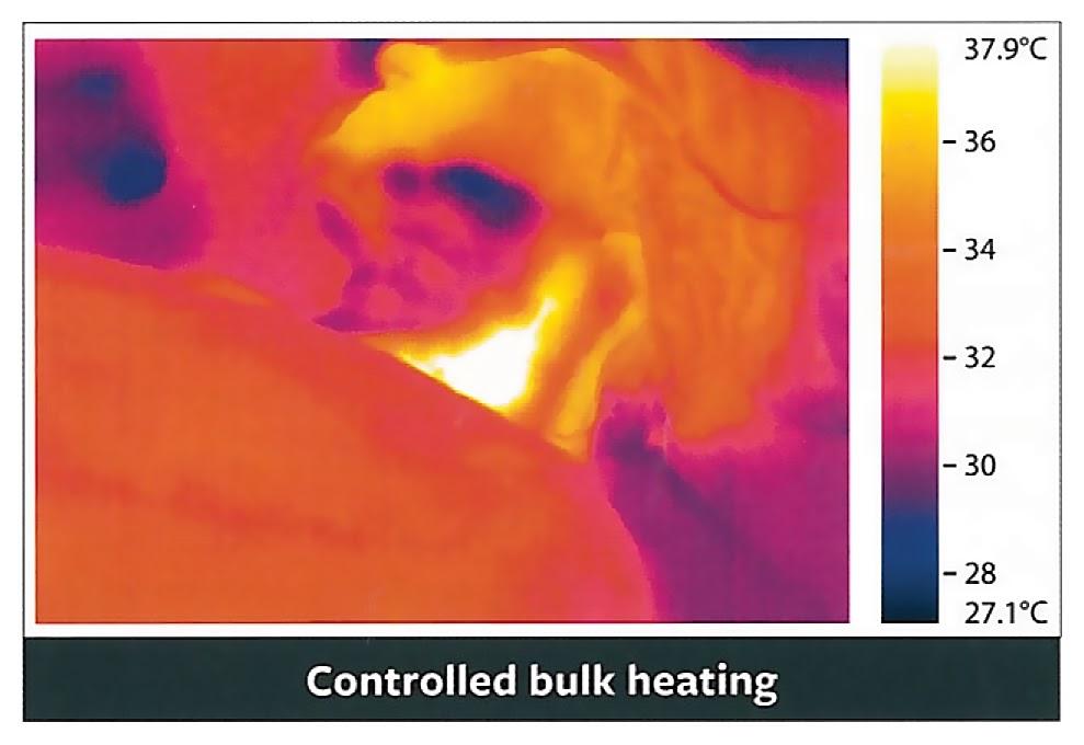fotona 4d bulk heating
