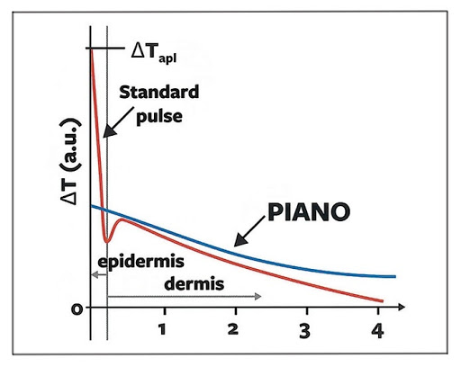 fotona 4d laser PIANO mode sl aesthetic clinic Singapore