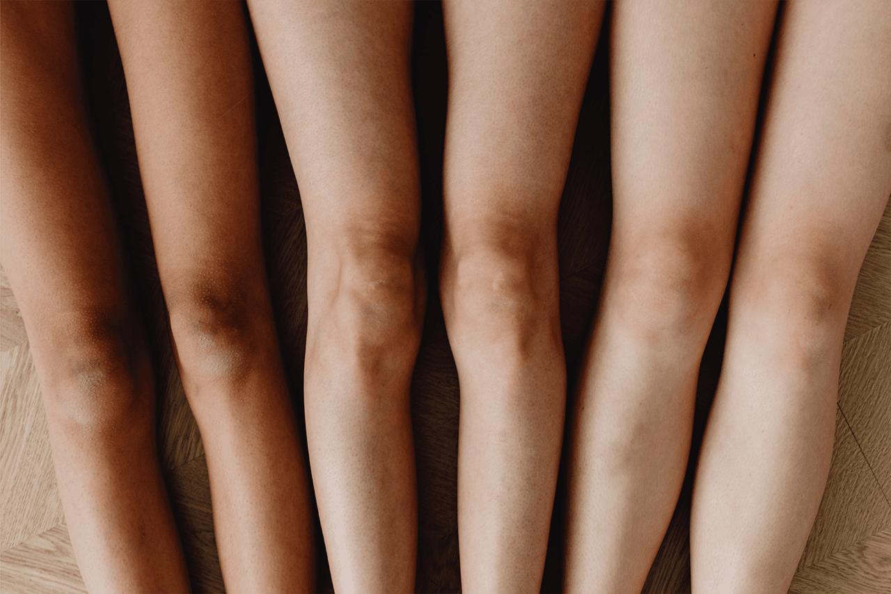 fotona laser hair removal for dark skin